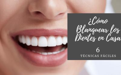 Como blanquear los dientes en casa: 6 técnicas súper sencillas