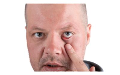 Cómo Curar Orzuelos en los Ojos: Remedios y prevención