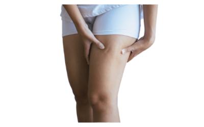 Cómo Eliminar la Celulitis de las Piernas