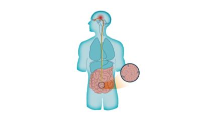 Cómo Evitar la Inflamación Abdominal