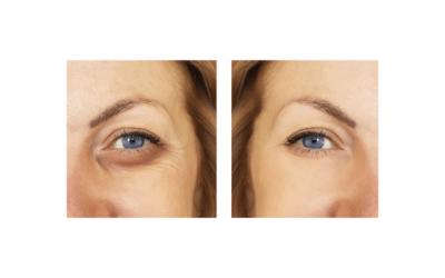 Cómo Eliminar las Ojeras: Remedios Caseros y Mucho Más