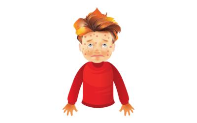 Cómo saber si un Niño o un Adulto tienen Varicela