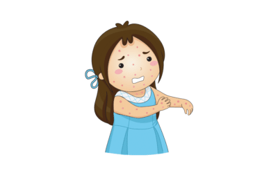 Cómo Identificar al Sarampión: Síntomas y Tratamiento Completo