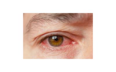 Cómo Quitar la Conjuntivitis: Tipos, Síntomas y Tratamiento