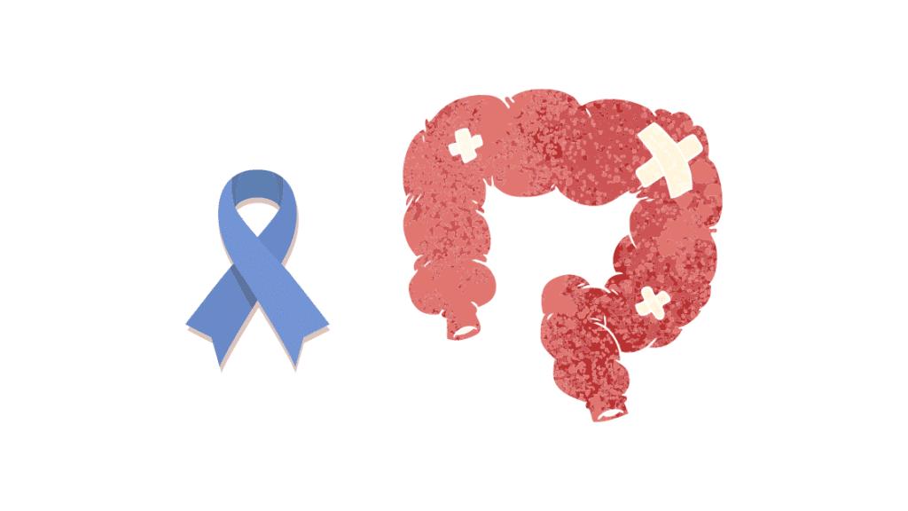 Cómo se manifiesta el cáncer de colon