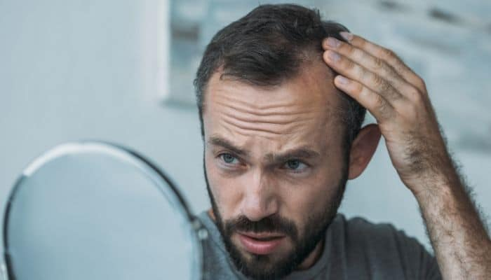 caida del pelo en hombres